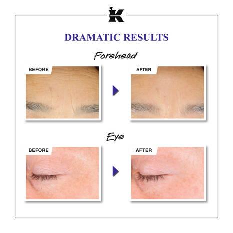 Serum quotidien microdose de retinol pour le renouvellement de la peau